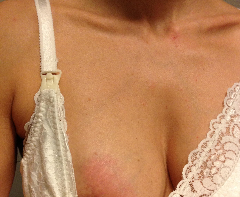 inflammation i bröstet utan amning